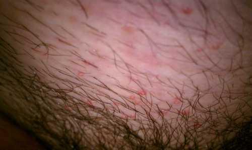 Гепатит С у мужчин: симптомы, причины, это