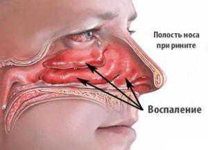 Воспаление слизистой носа: симптомы, причины, это