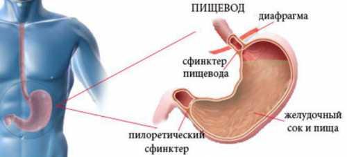 Гастроэзофагеальный рефлюкс с эзофагитом, без эзофагита